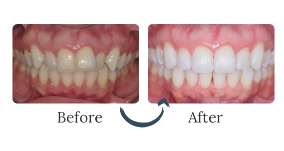 A befor eand after photo of a patient using invisalign braces