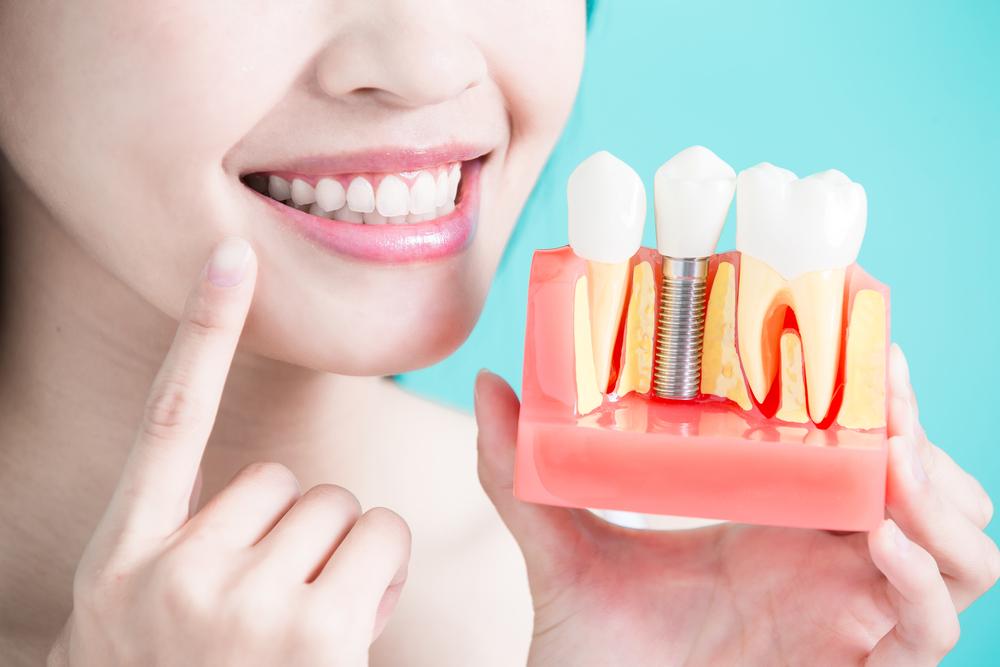 displaying dental implants