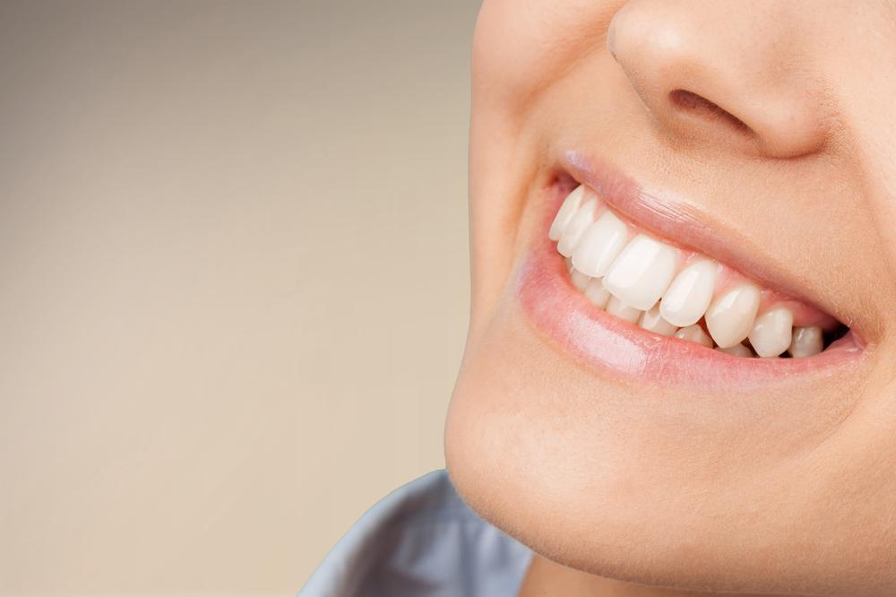 woman smiles with white teeth